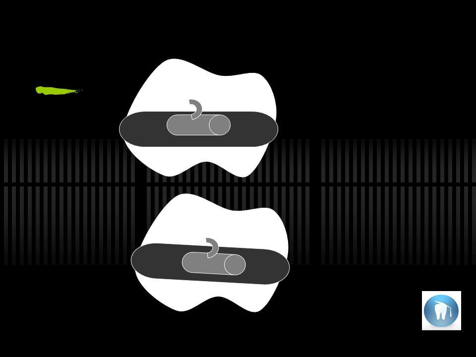 En sentido mesiodistal el tubo debe ir // al plano oclusal del molar, la tendencia es colocarlo mas alto de mesial para que al nivelarse la cúspide mesial baje y el molar se disto incline aumentando así el anclaje.