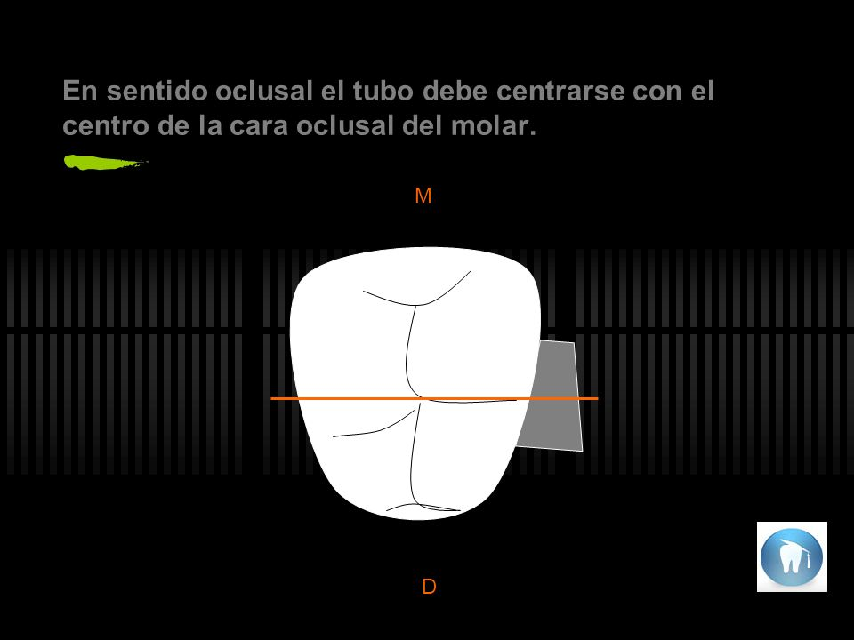 En sentido oclusal el tubo debe centrarse con el centro de la cara oclusal del molar. 10º M D