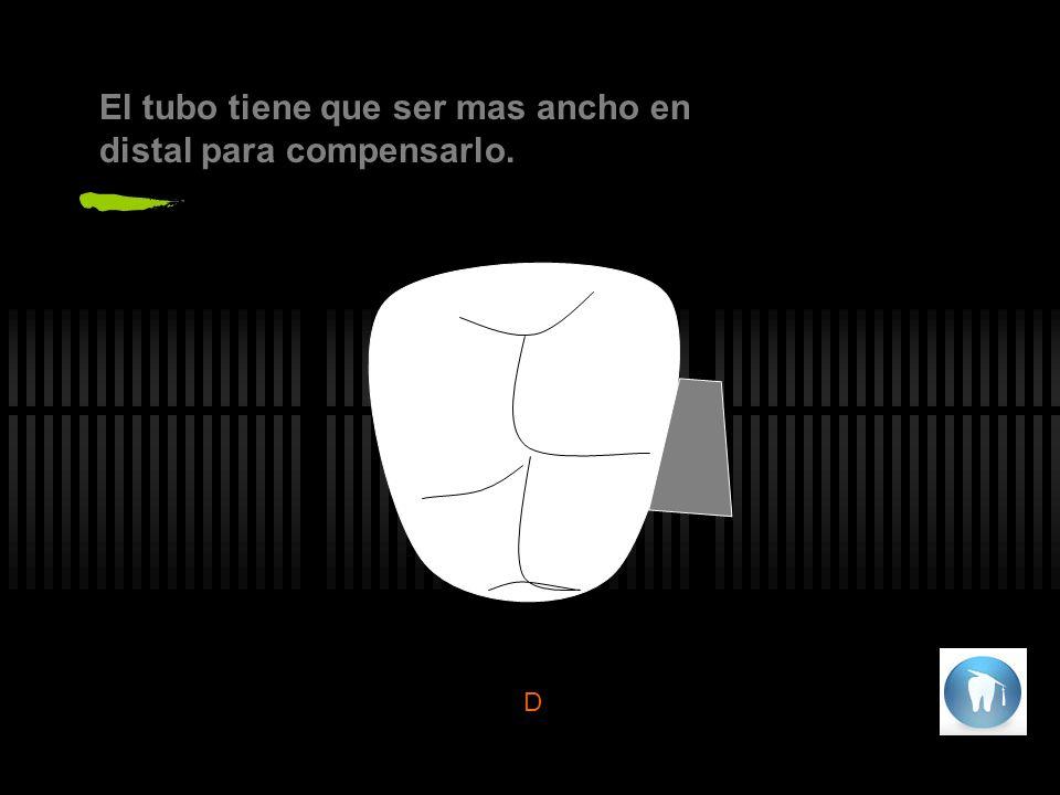 Los incisivos laterales superiores deben ser un 70% del tamaño de los centrales superiores y de mayor tamaño que su homologo inferior.