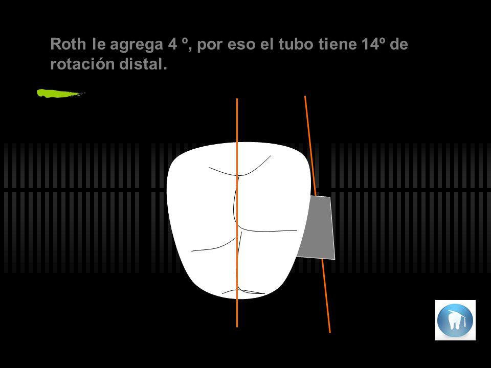 Hay que chequear la forma de los arcos y coordinarlos entre si, teniendo presente que entre el arco superior y el inferior debe haber una separación de 3mm