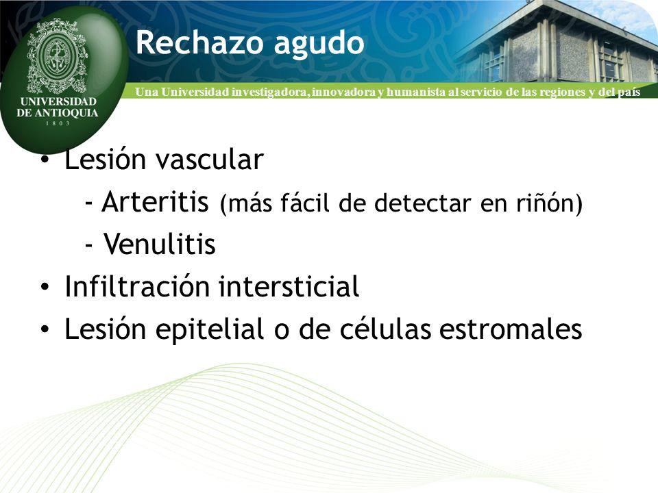 Una Universidad investigadora, innovadora y humanista al servicio de las regiones y del país Rechazo agudo Lesión vascular - Arteritis (más fácil de d