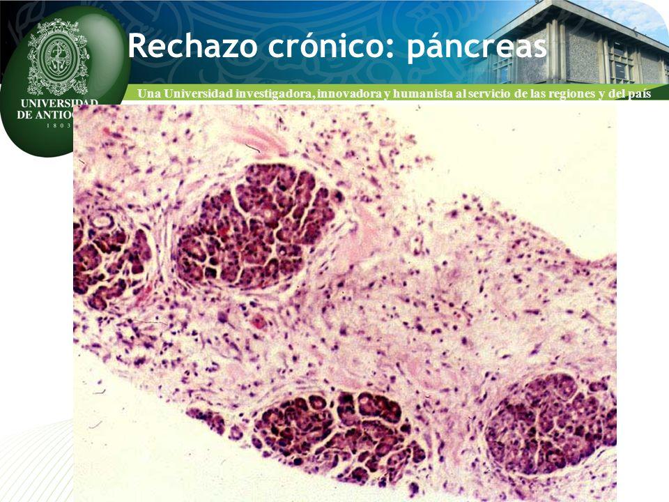 Una Universidad investigadora, innovadora y humanista al servicio de las regiones y del país Rechazo crónico: páncreas