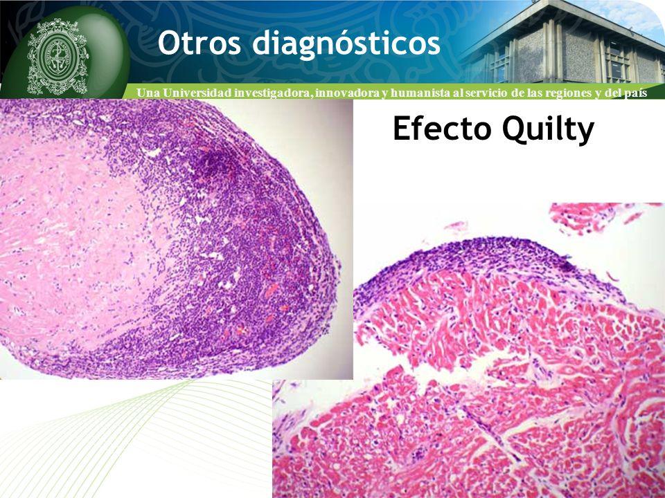 Una Universidad investigadora, innovadora y humanista al servicio de las regiones y del país Otros diagnósticos Efecto Quilty