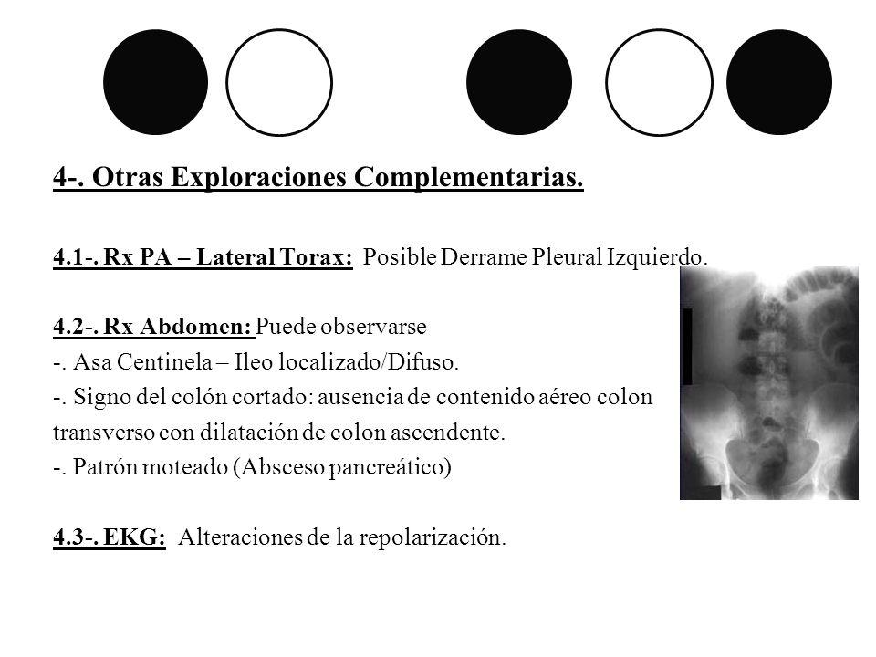 4-. Otras Exploraciones Complementarias. 4.1-. Rx PA – Lateral Torax: Posible Derrame Pleural Izquierdo. 4.2-. Rx Abdomen: Puede observarse -. Asa Cen