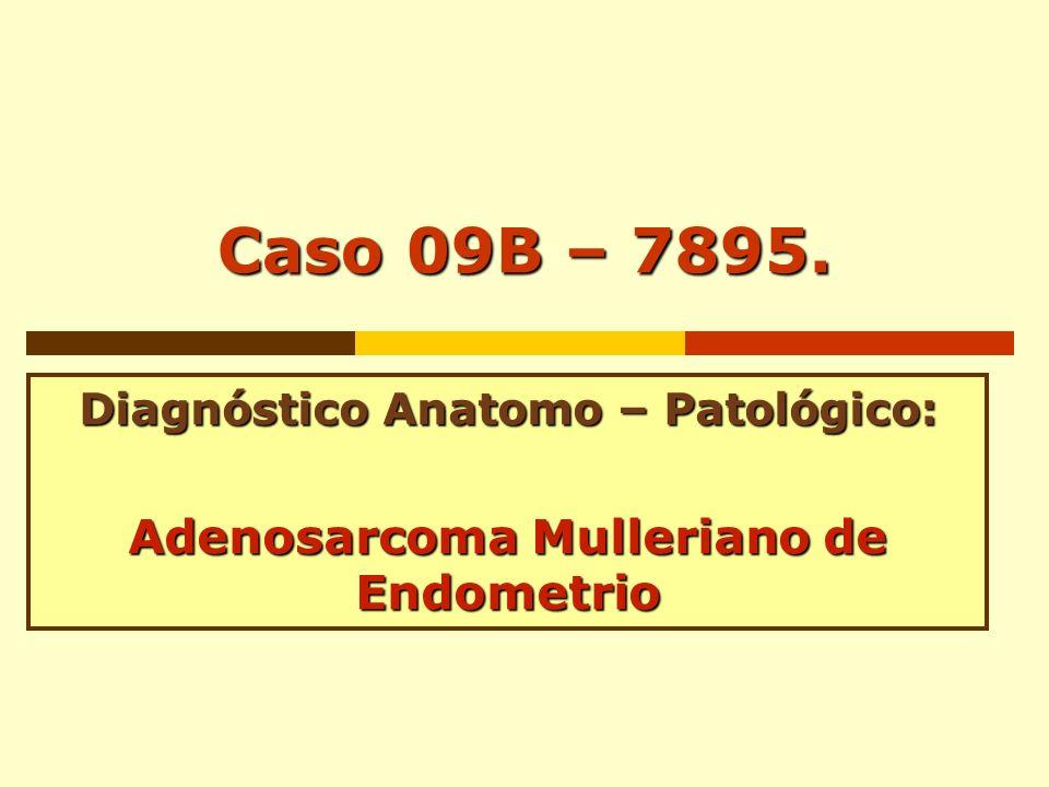 Diagnóstico Anatomo – Patológico: Adenosarcoma Mulleriano de Endometrio