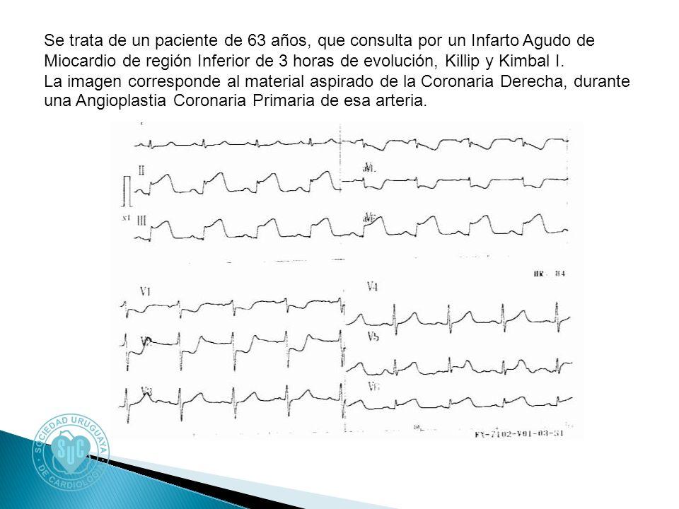 Se trata de un paciente de 63 años, que consulta por un Infarto Agudo de Miocardio de región Inferior de 3 horas de evolución, Killip y Kimbal I. La i