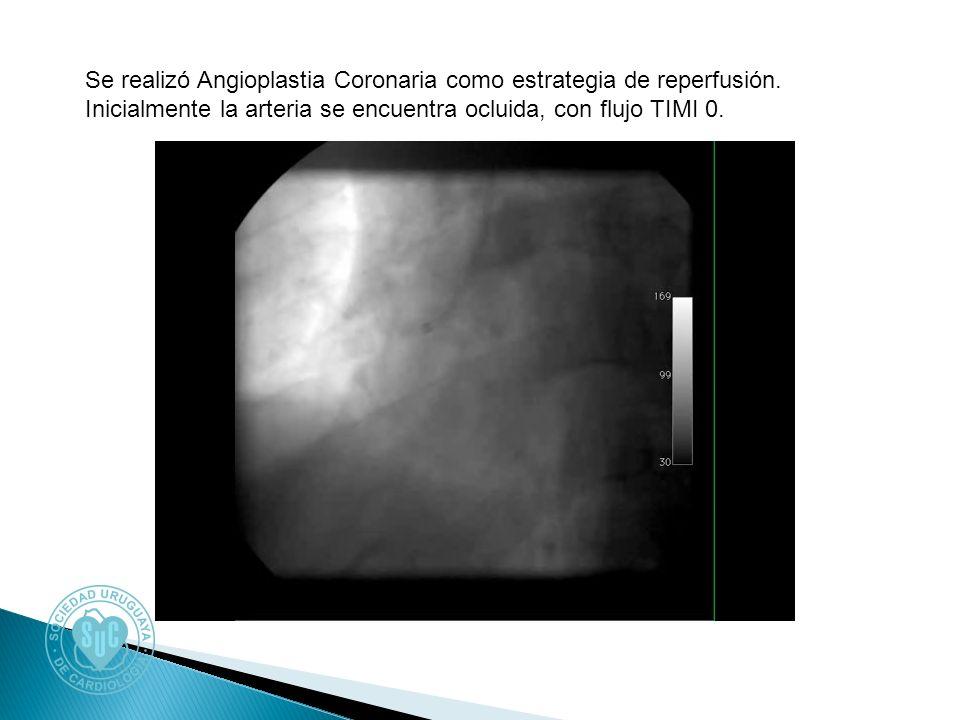Se realizó Angioplastia Coronaria como estrategia de reperfusión. Inicialmente la arteria se encuentra ocluida, con flujo TIMI 0.