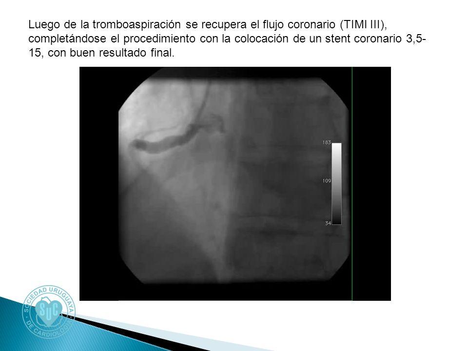 Luego de la tromboaspiración se recupera el flujo coronario (TIMI III), completándose el procedimiento con la colocación de un stent coronario 3,5- 15