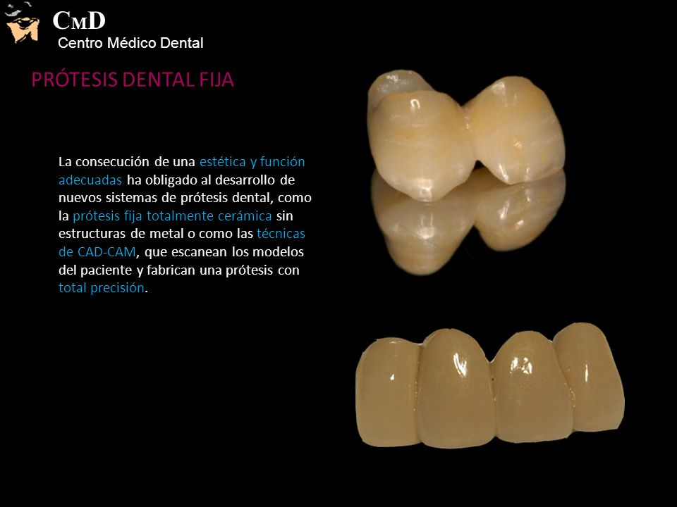 PRÓTESIS DENTAL FIJA La consecución de una estética y función adecuadas ha obligado al desarrollo de nuevos sistemas de prótesis dental, como la prótesis fija totalmente cerámica sin estructuras de metal o como las técnicas de CAD-CAM, que escanean los modelos del paciente y fabrican una prótesis con total precisión.