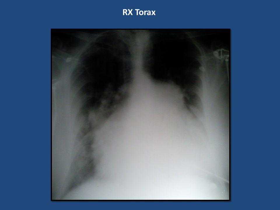 RX Torax