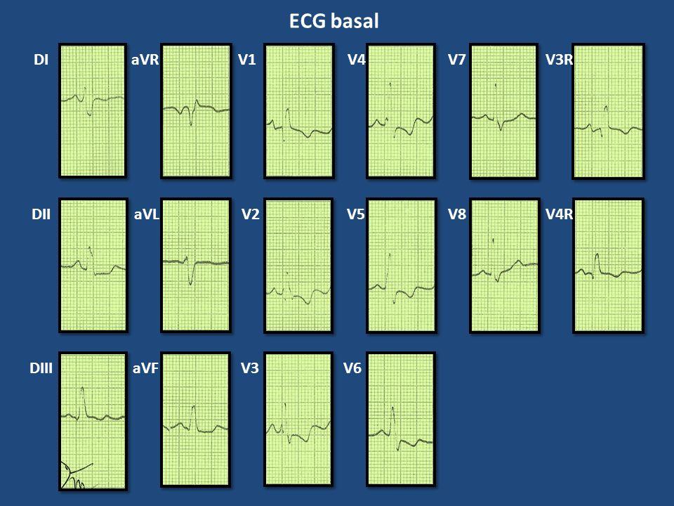ECG basal DI DII DIII aVR aVL aVF V1 V2 V3 V4 V5 V6 V7 V8 V3R V4R