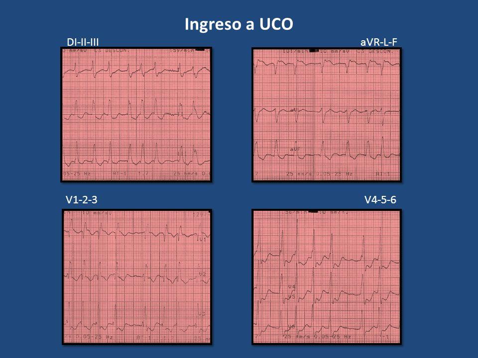 Ingreso a UCO DI-II-IIIaVR-L-F V1-2-3V4-5-6