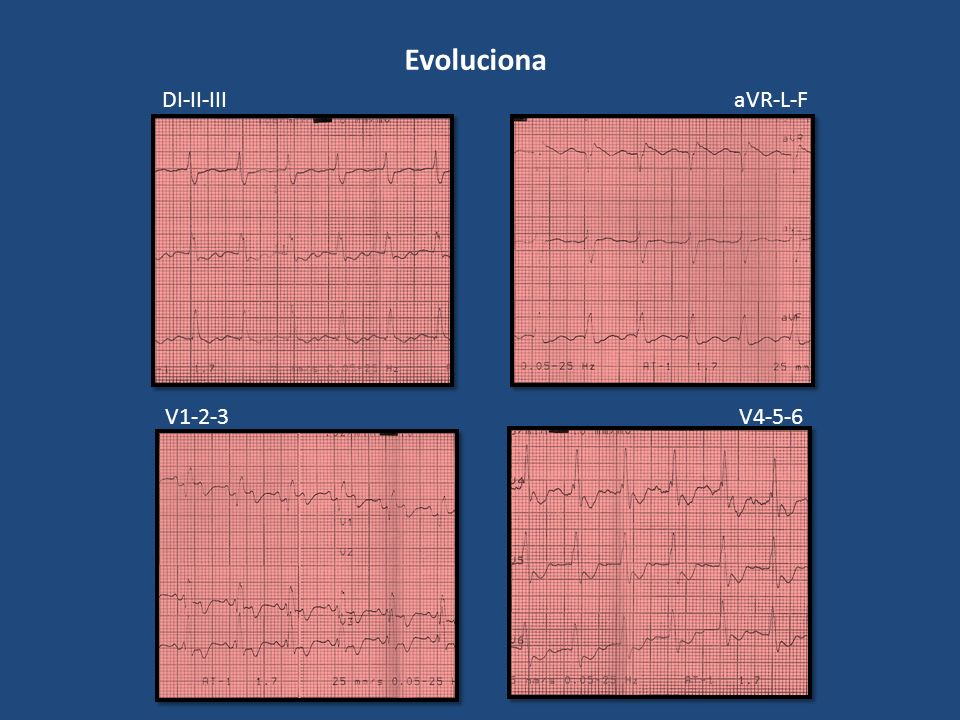 Evoluciona DI-II-IIIaVR-L-F V1-2-3V4-5-6