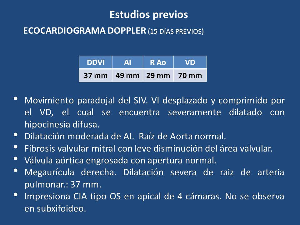 Estudios previos ECOCARDIOGRAMA DOPPLER (15 DÍAS PREVIOS) Movimiento paradojal del SIV. VI desplazado y comprimido por el VD, el cual se encuentra sev