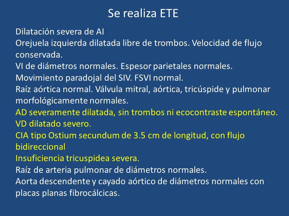 Se realiza ETE Dilatación severa de AI Orejuela izquierda dilatada libre de trombos. Velocidad de flujo conservada. VI de diámetros normales. Espesor