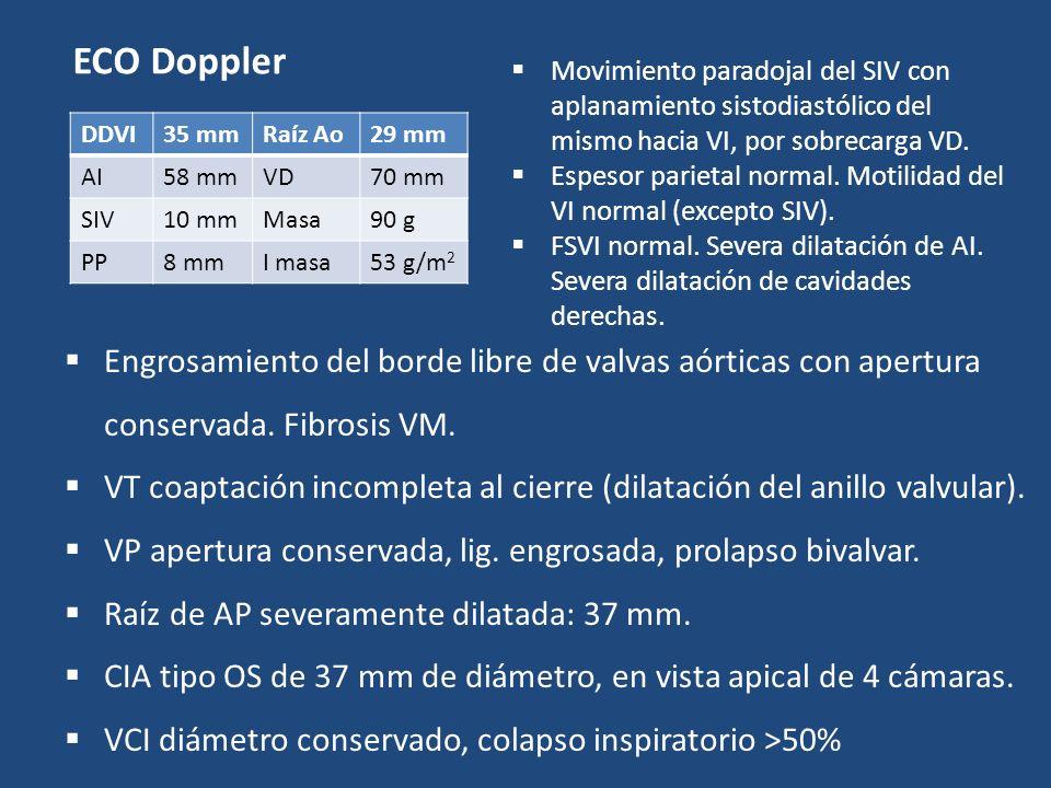 ECO Doppler DDVI35 mmRaíz Ao29 mm AI58 mmVD70 mm SIV10 mmMasa90 g PP8 mmI masa53 g/m 2 Engrosamiento del borde libre de valvas aórticas con apertura c