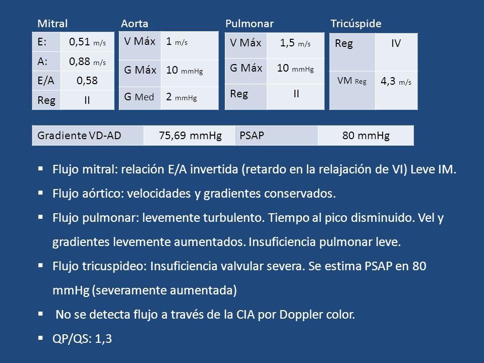 E:0,51 m/s A:0,88 m/s E/A0,58 RegII Mitral V Máx1 m/s G Máx10 mmHg G Med 2 mmHg Aorta V Máx1,5 m/s G Máx10 mmHg Reg II Pulmonar RegIV VM Reg 4,3 m/s T