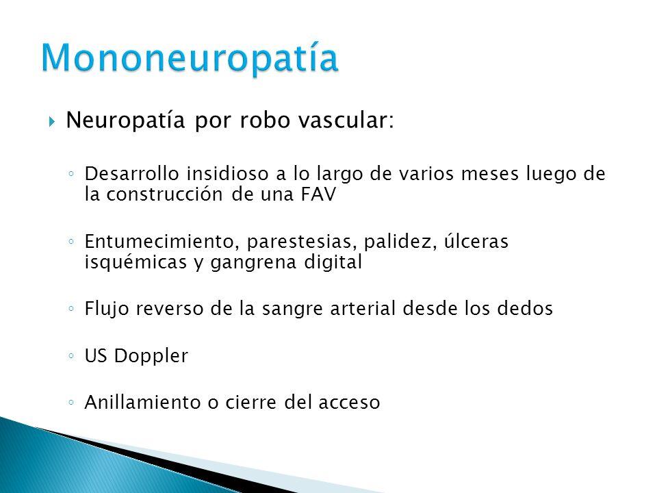 Neuropatía por robo vascular: Desarrollo insidioso a lo largo de varios meses luego de la construcción de una FAV Entumecimiento, parestesias, palidez