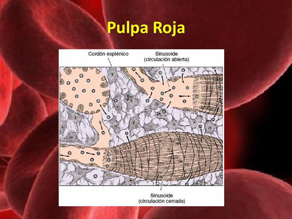 Pulpa Roja