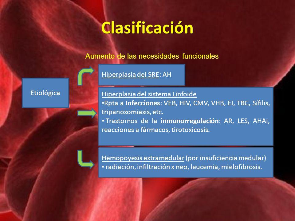 Clasificación Etiológica Hiperplasia del SRE: AH Aumento de las necesidades funcionales Hiperplasia del sistema Linfoide Rpta a Infecciones: VEB, HIV,
