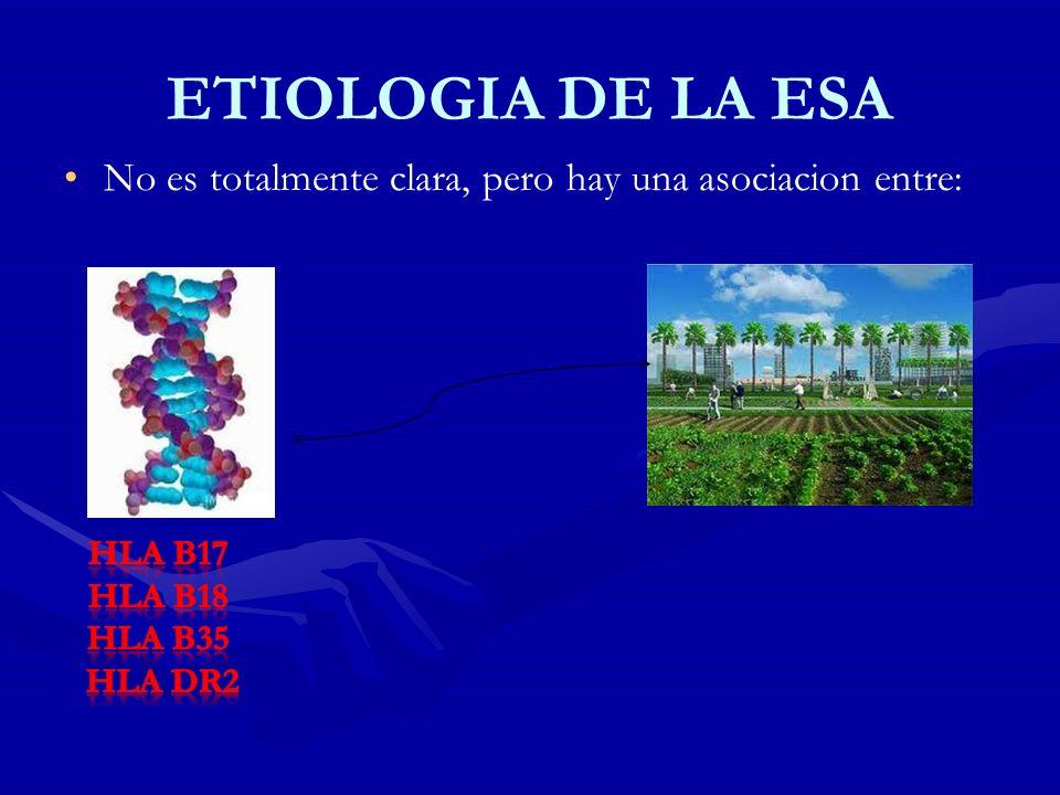 ETIOLOGIA DE LA ESA No es totalmente clara, pero hay una asociacion entre: