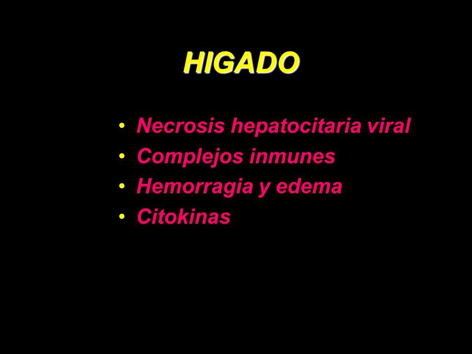 HIGADO Necrosis hepatocitaria viral Complejos inmunes Hemorragia y edema Citokinas