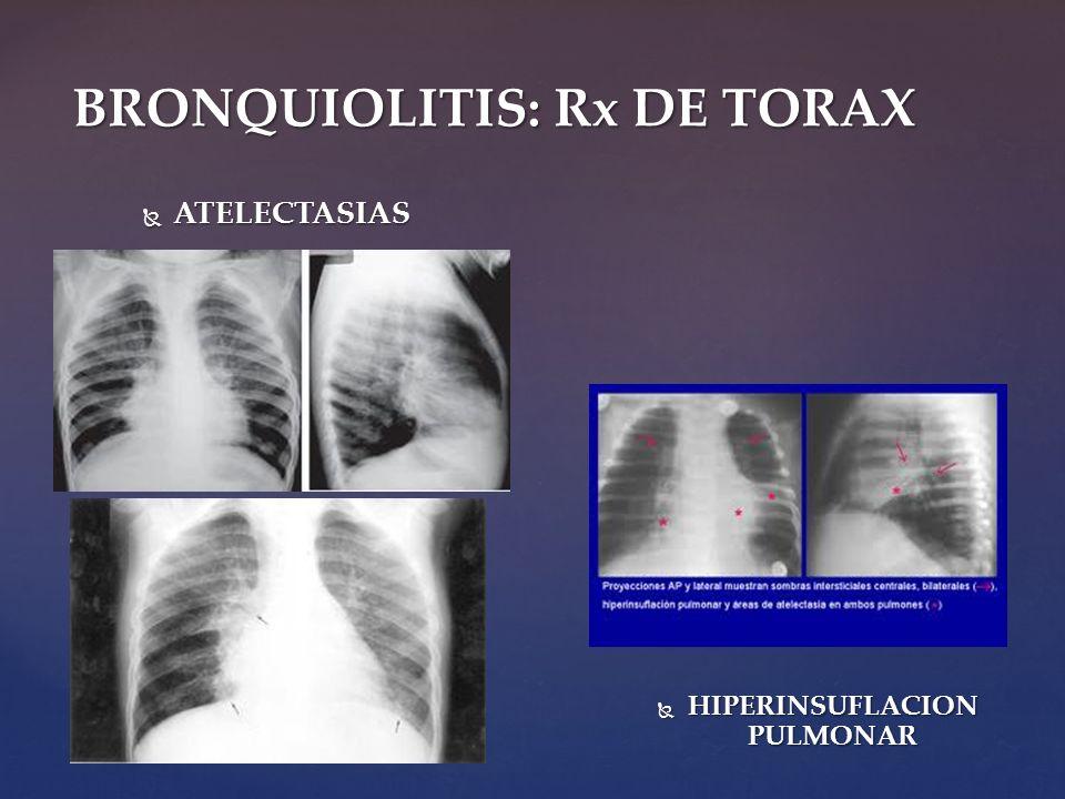 BRONQUIOLITIS: Rx DE TORAX ATELECTASIAS ATELECTASIAS HIPERINSUFLACION PULMONAR HIPERINSUFLACION PULMONAR