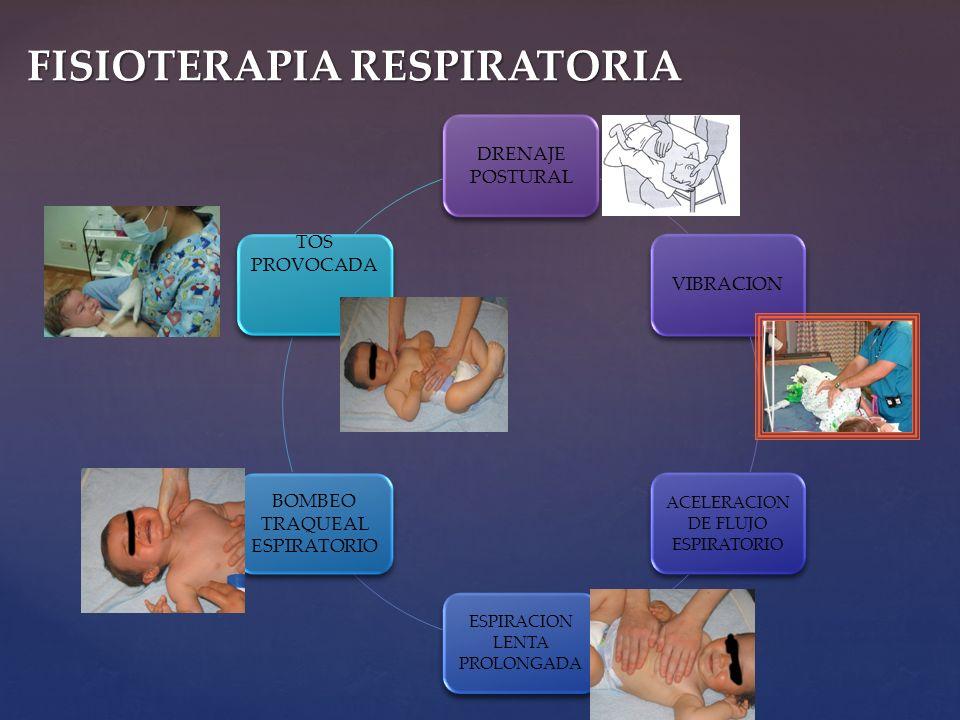 DRENAJE POSTURAL VIBRACION ACELERACION DE FLUJO ESPIRATORIO ESPIRACION LENTA PROLONGADA BOMBEO TRAQUEAL ESPIRATORIO TOS PROVOCADA FISIOTERAPIA RESPIRA
