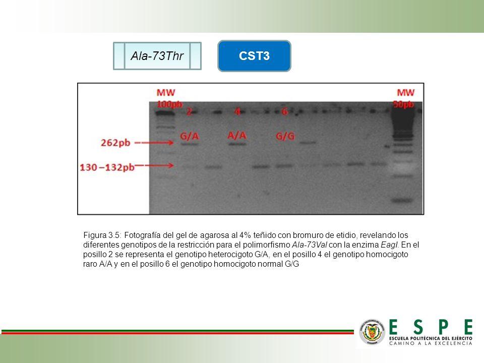 Ala-73Thr CST3 Figura 3.5: Fotografía del gel de agarosa al 4% teñido con bromuro de etidio, revelando los diferentes genotipos de la restricción para