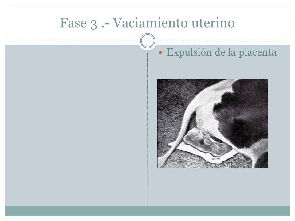 Fase 3.- Vaciamiento uterino Expulsión de la placenta