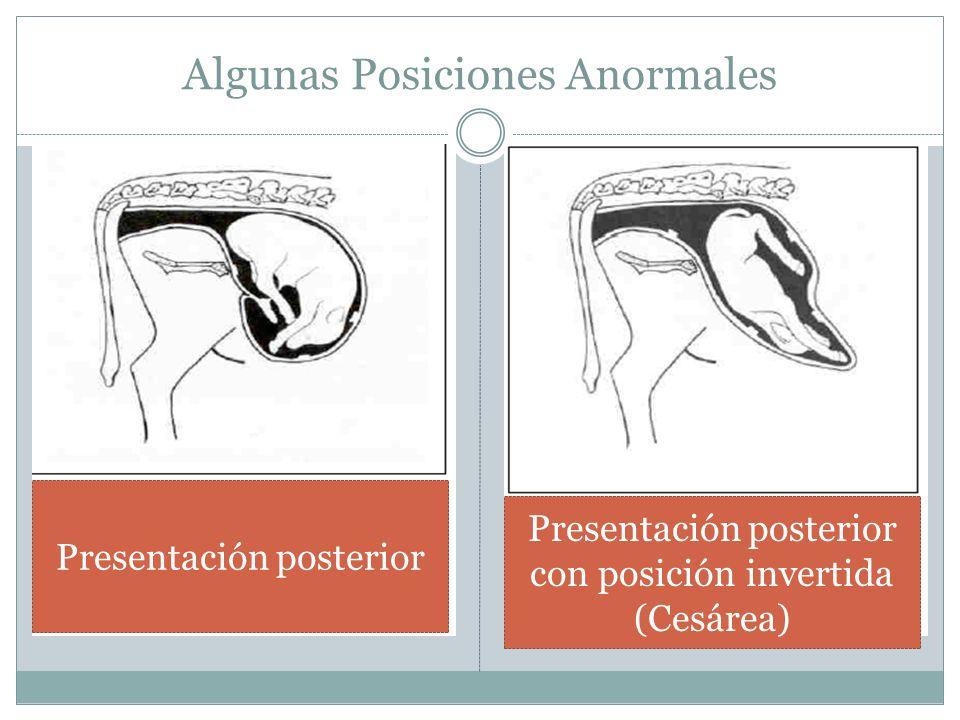 Algunas Posiciones Anormales Presentación posterior Presentación posterior con posición invertida (Cesárea)
