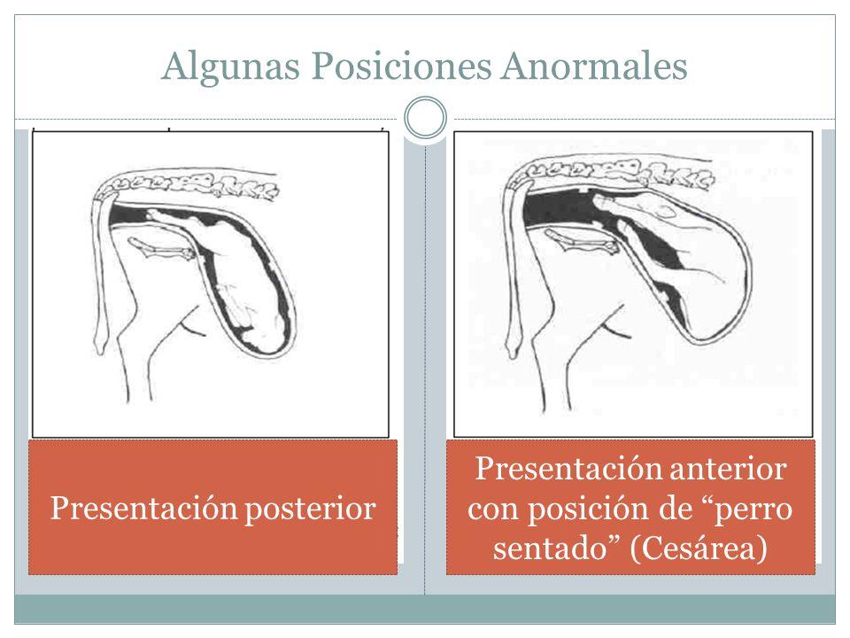 Algunas Posiciones Anormales Presentación posterior Presentación anterior con posición de perro sentado (Cesárea)