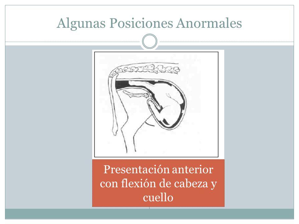 Algunas Posiciones Anormales Presentación anterior con flexión de cabeza y cuello