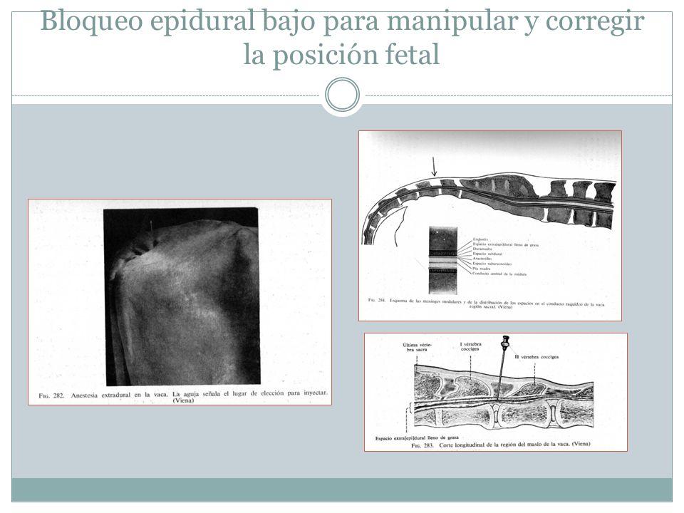 Bloqueo epidural bajo para manipular y corregir la posición fetal