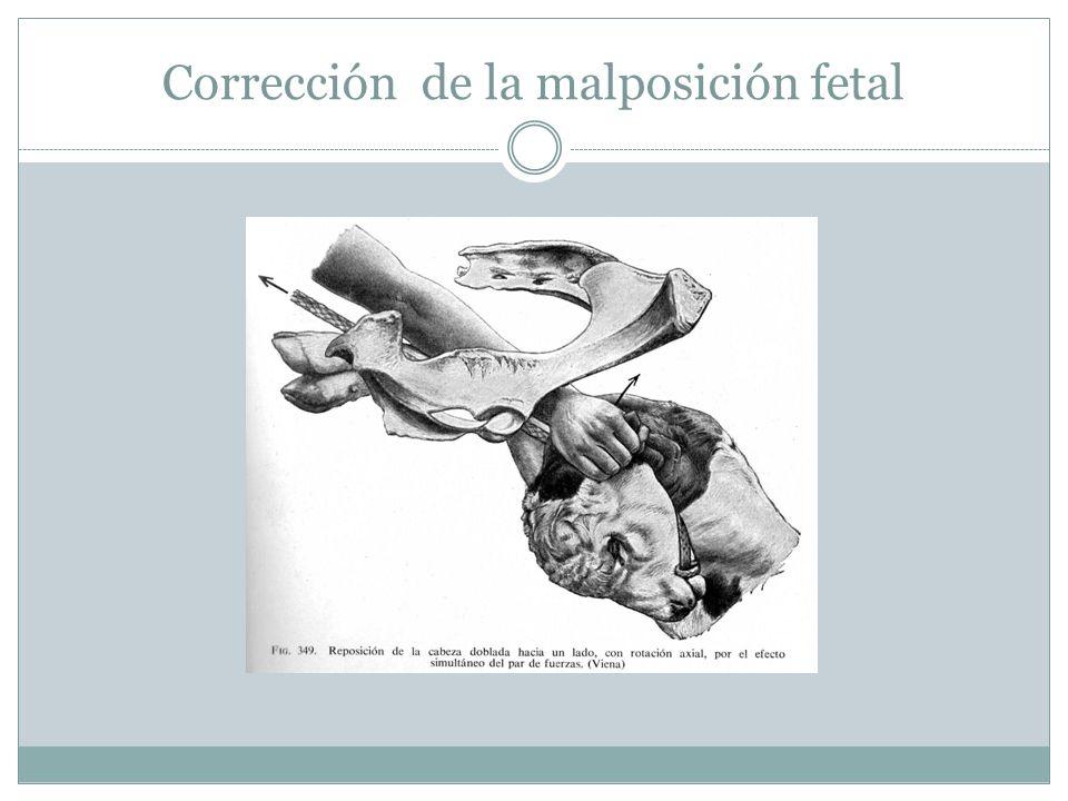 Corrección de la malposición fetal