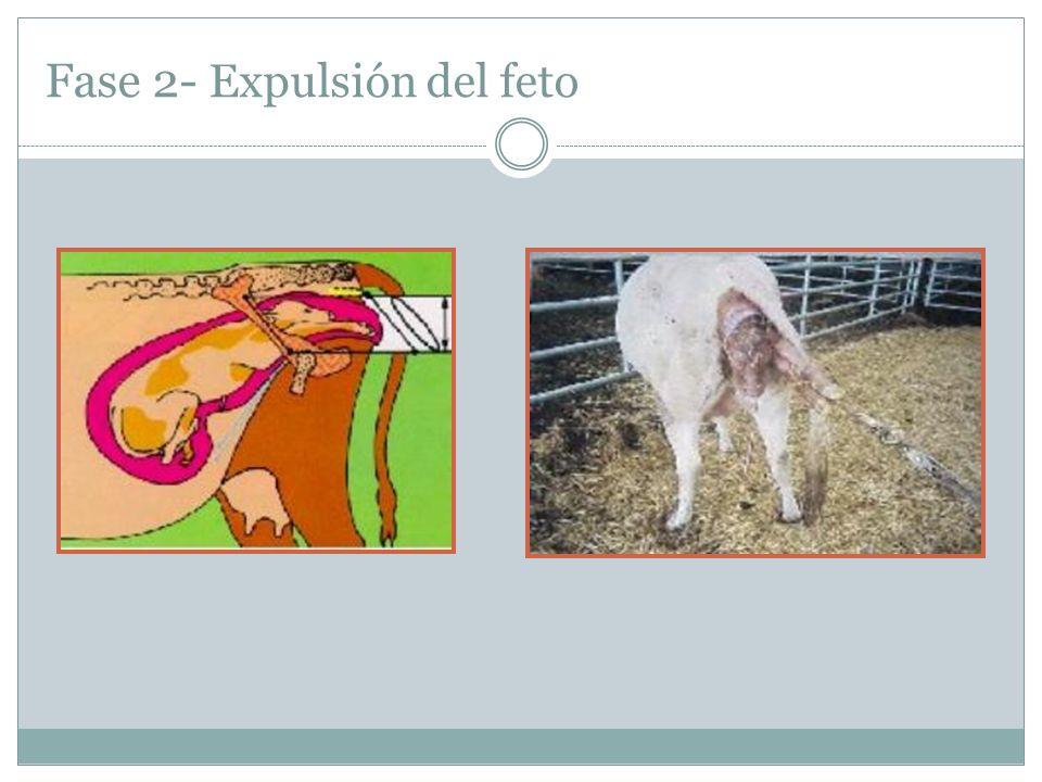 Fase 2- Expulsión del feto