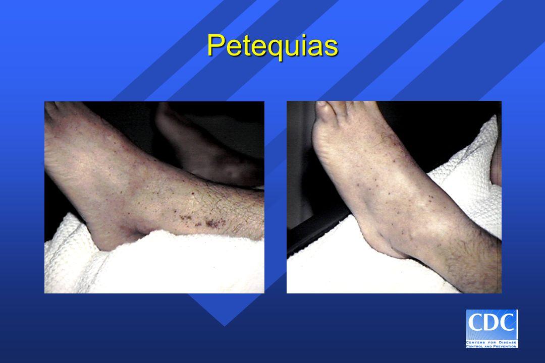Petequias