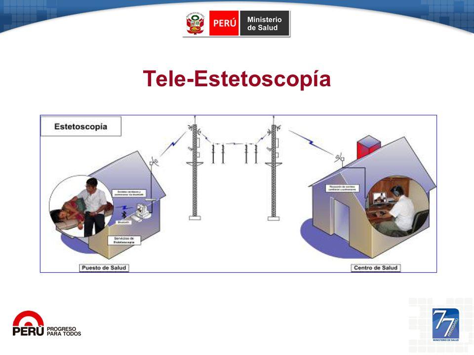 Tele-Estetoscopía