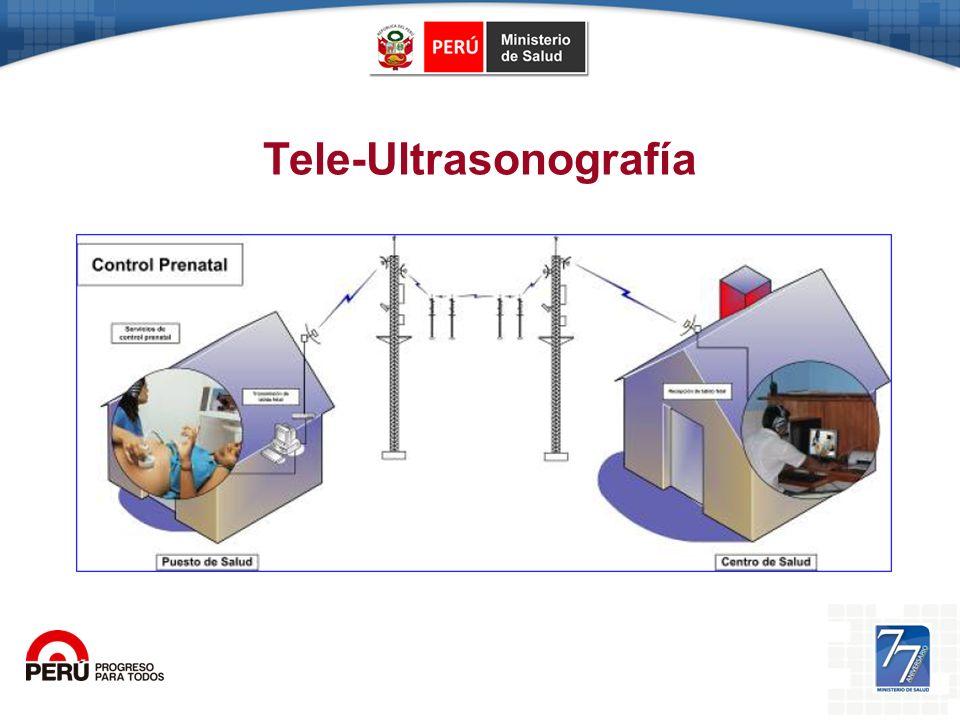 Tele-Ultrasonografía