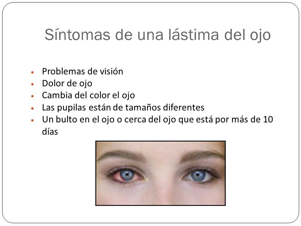 Síntomas de una lástima del ojo Problemas de visión Dolor de ojo Cambia del color el ojo Las pupilas están de tamaños diferentes Un bulto en el ojo o