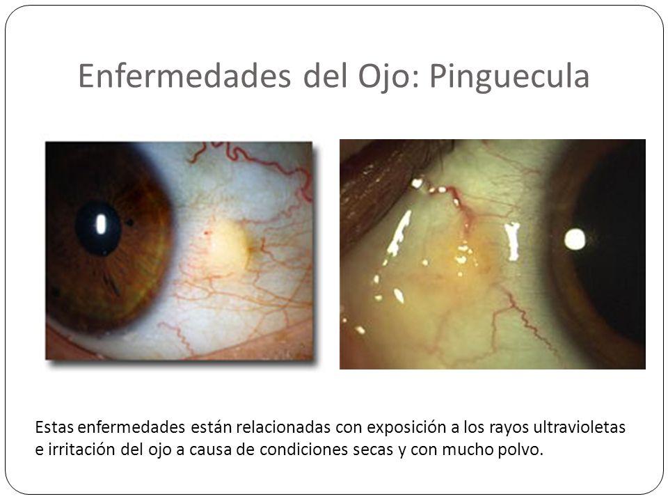 Enfermedades del Ojo: Pinguecula Estas enfermedades están relacionadas con exposición a los rayos ultravioletas e irritación del ojo a causa de condic