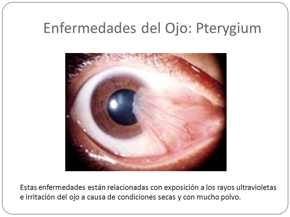 Enfermedades del Ojo: Pterygium Estas enfermedades están relacionadas con exposición a los rayos ultravioletas e irritación del ojo a causa de condici