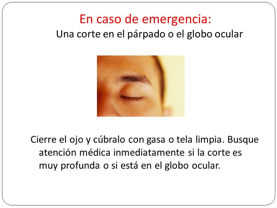 En caso de emergencia: Una corte en el párpado o el globo ocular Cierre el ojo y cúbralo con gasa o tela limpia. Busque atención médica inmediatamente