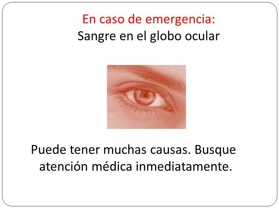 En caso de emergencia: Sangre en el globo ocular Puede tener muchas causas. Busque atención médica inmediatamente.
