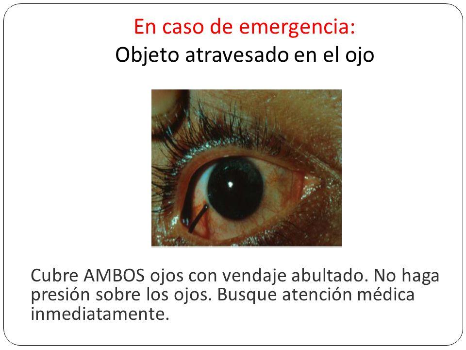 En caso de emergencia: Objeto atravesado en el ojo Cubre AMBOS ojos con vendaje abultado. No haga presión sobre los ojos. Busque atención médica inmed