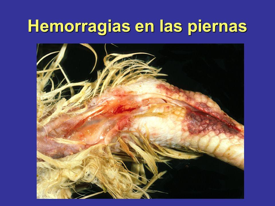 Hemorragias en las piernas