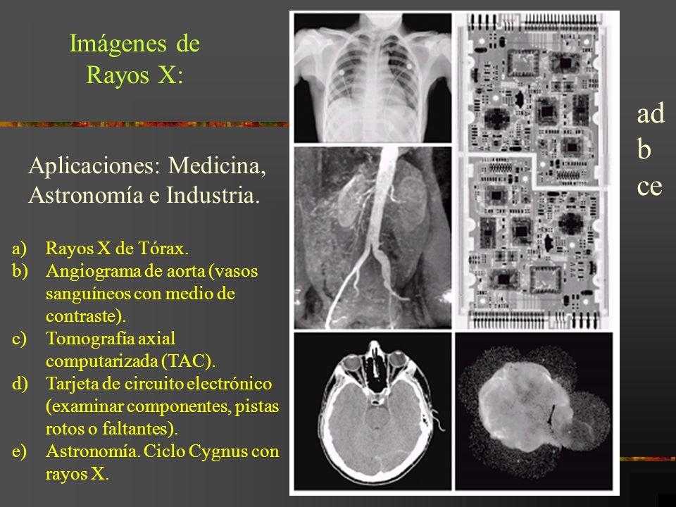 Imágenes de Rayos X: Aplicaciones: Medicina, Astronomía e Industria. a)Rayos X de Tórax. b)Angiograma de aorta (vasos sanguíneos con medio de contrast