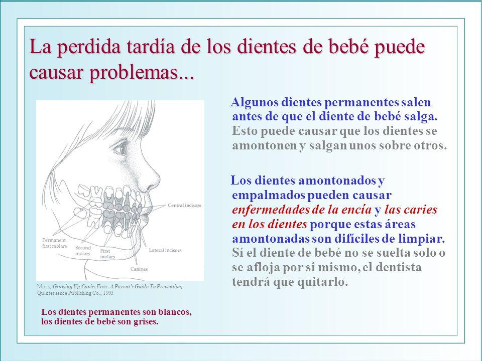 La perdida tardía de los dientes de bebé puede causar problemas... Algunos dientes permanentes salen antes de que el diente de bebé salga. Esto puede