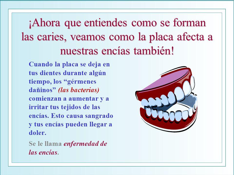¡Ahora que entiendes como se forman las caries, veamos como la placa afecta a nuestras encías también! Cuando la placa se deja en tus dientes durante