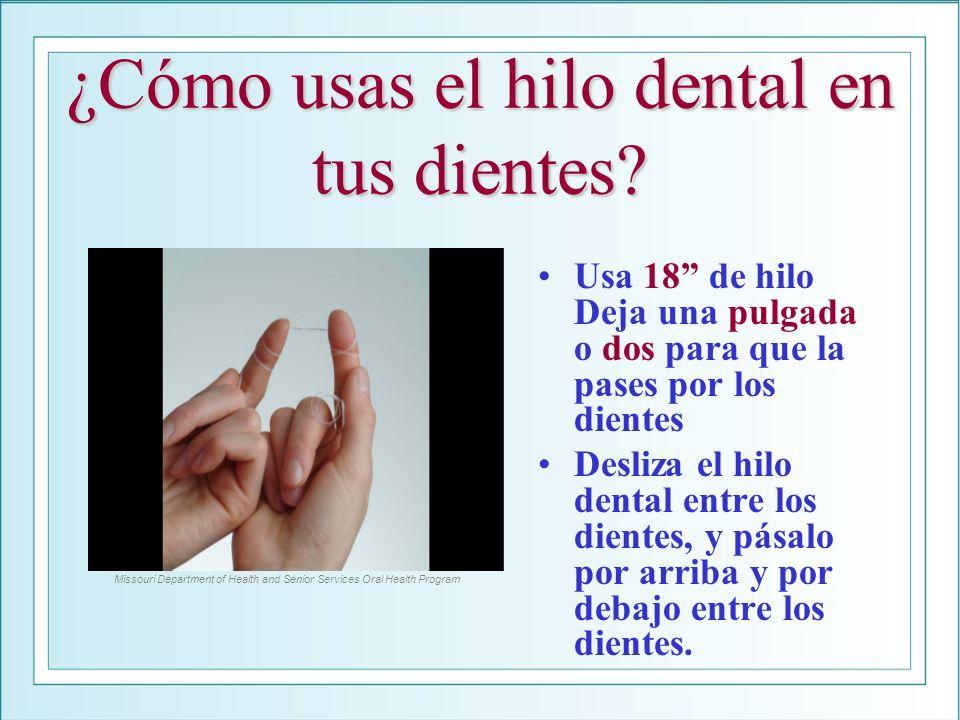 ¿Cómo usas el hilo dental en tus dientes? Usa 18 de hilo Deja una pulgada o dos para que la pases por los dientes Desliza el hilo dental entre los die